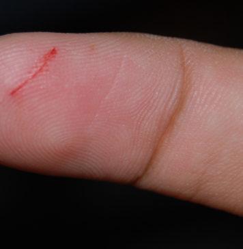 come cicatrizzare una ferita